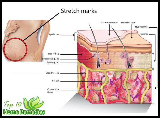 علامات التمدد على الجلد (1)