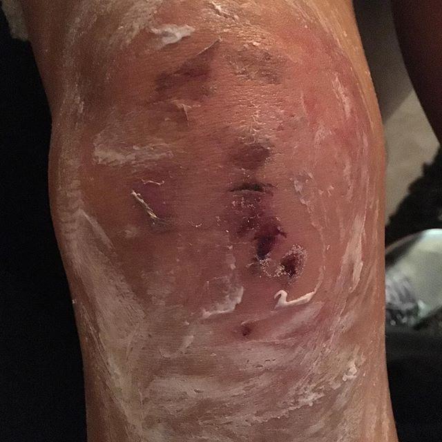 إصابة غادة عبدالرازق أثناء تصوير مسلسل الخانكة