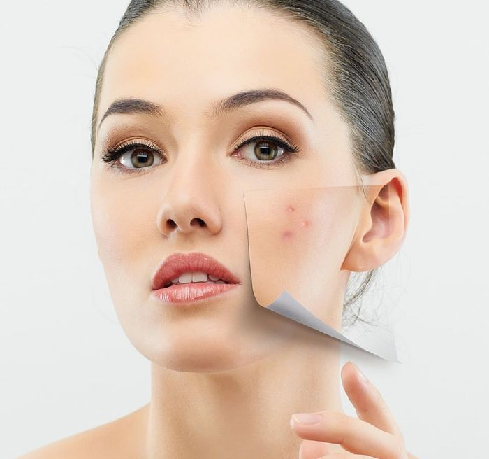 resized_1Acne-Problems-For-Women-5
