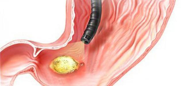 جرثومة المعدة واهم اعراضها