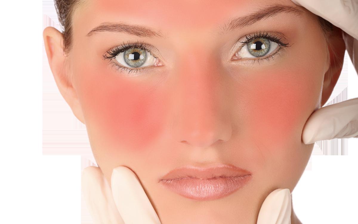 وصفات طبيعية لحروق الوجه من السباحة