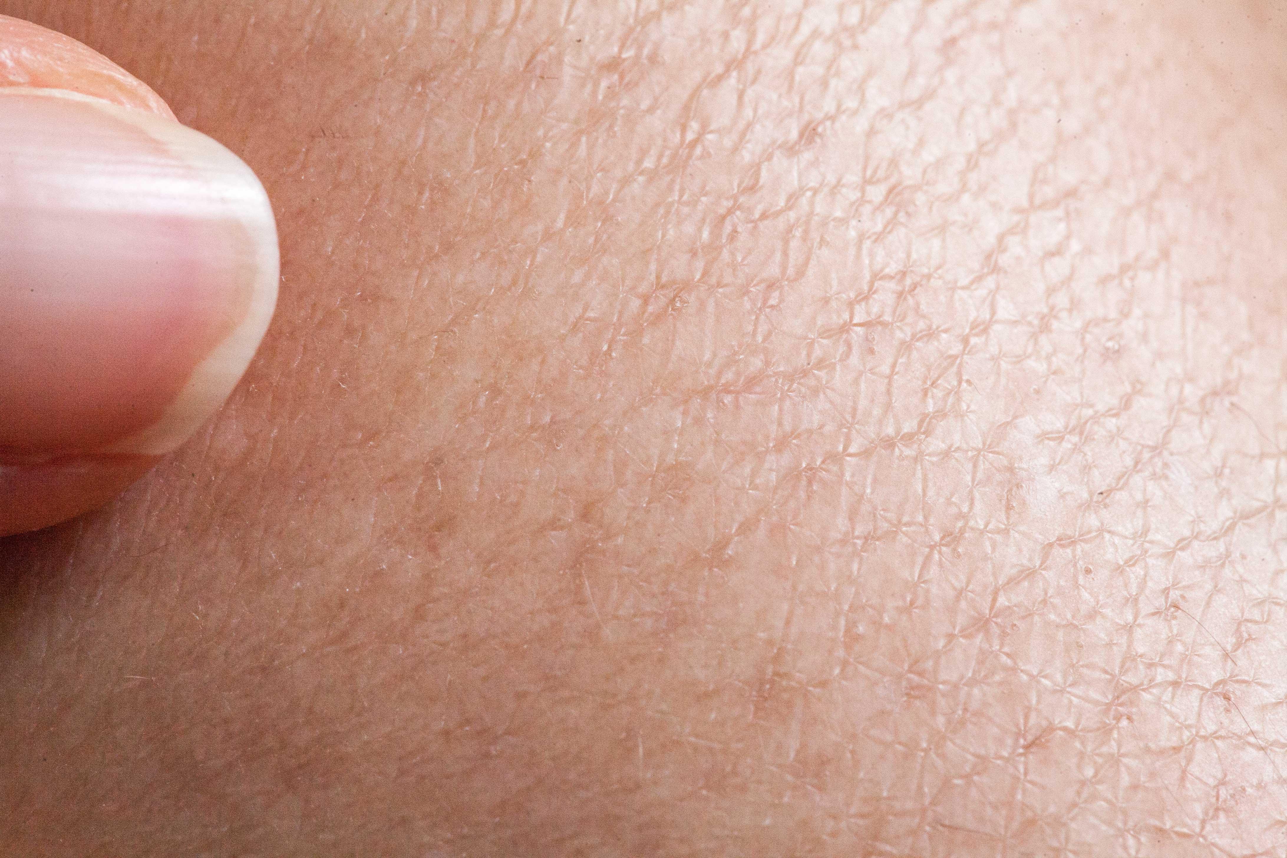 الجلد الجاف والمتشقق