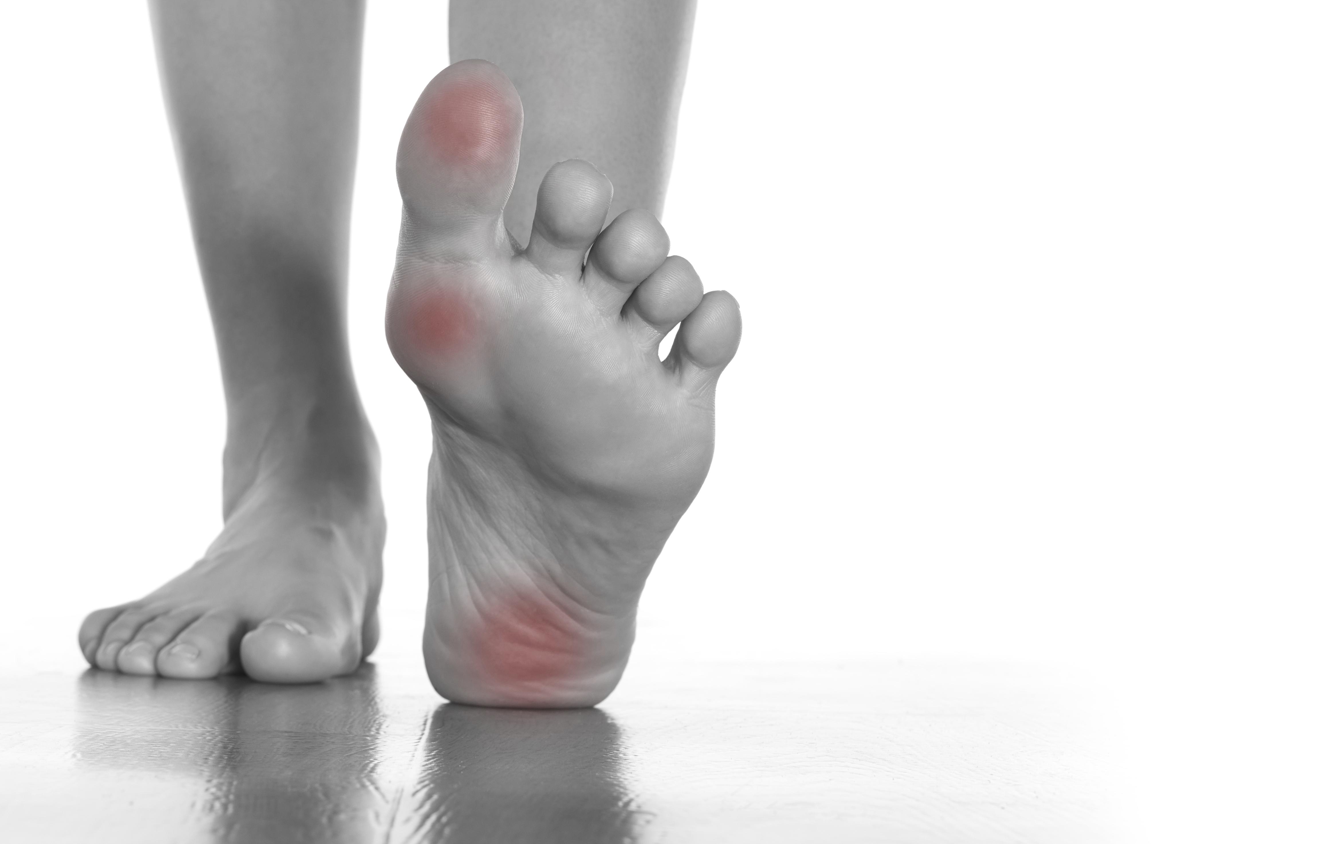 آلام القدم