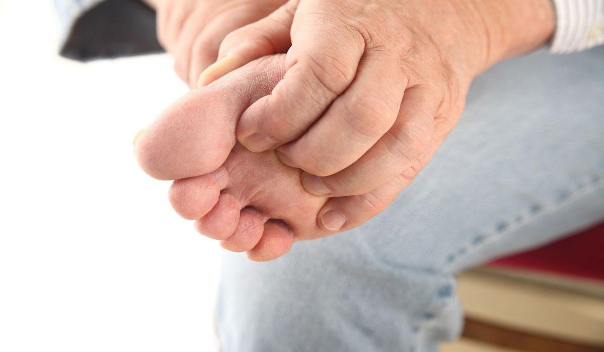 علاج الفطريات بالثوم
