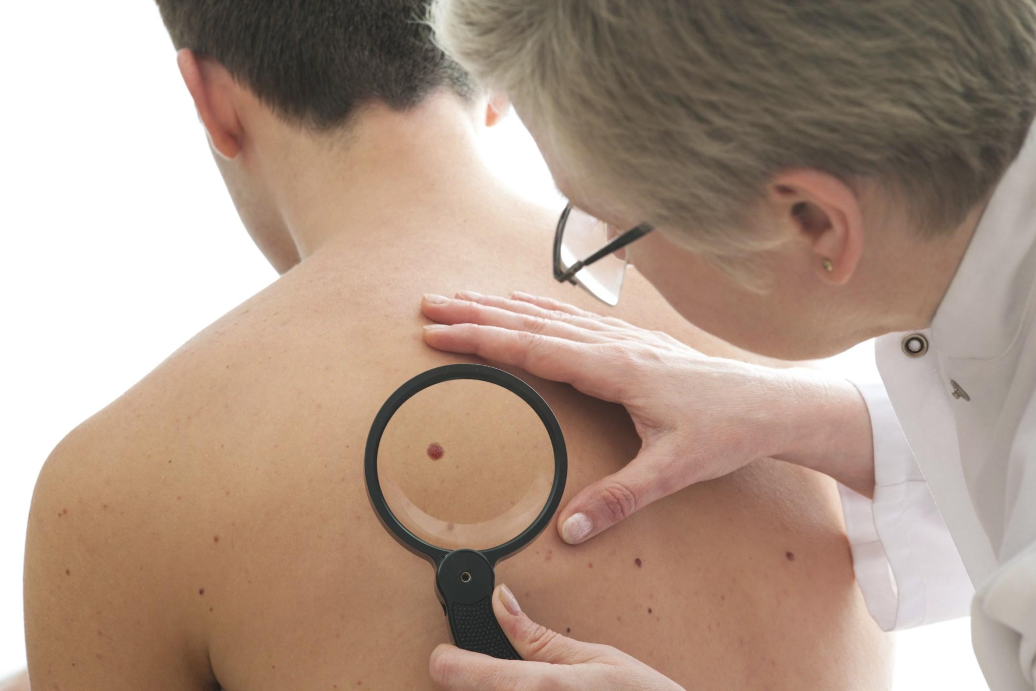 سرطان فى الجلد