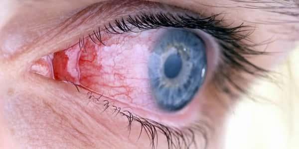 التهاب العين الفيروسي