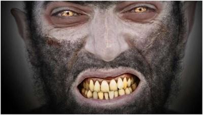 بالصور.. تقطيع جمجمة رجل يعاني من متلازمة وجه الأسد