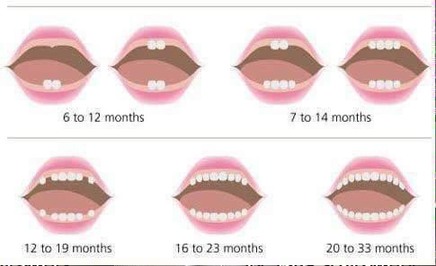 صورة توضيحية لمراحل ظهور الاسنان لدى الأطفال