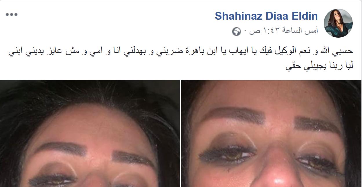 شاهيناز ضياء الدين تنشر صورها ووجهها مغطى بالدماء بعد تعرضها للضرب من زوجها ووالد ابنها