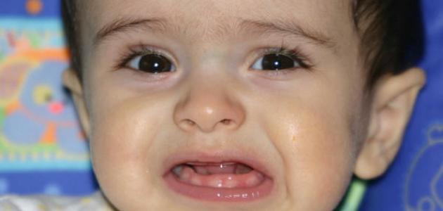 امراض الاسنان عند الرضع
