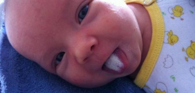 تكون الفطريات لدى الرضع