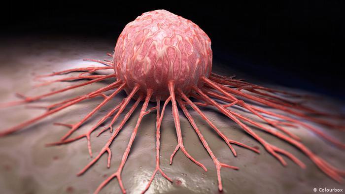 اكتشاف نوع من التوابل يعالج 8 أنواع من السرطان