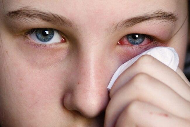 الأسباب التي تؤدي إلى تورم العين