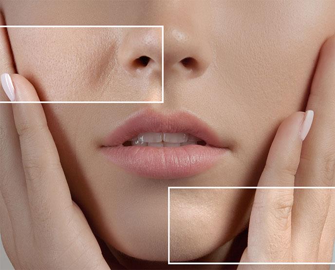 ماسكات طبيعية لتصغير حجم مسام الوجه