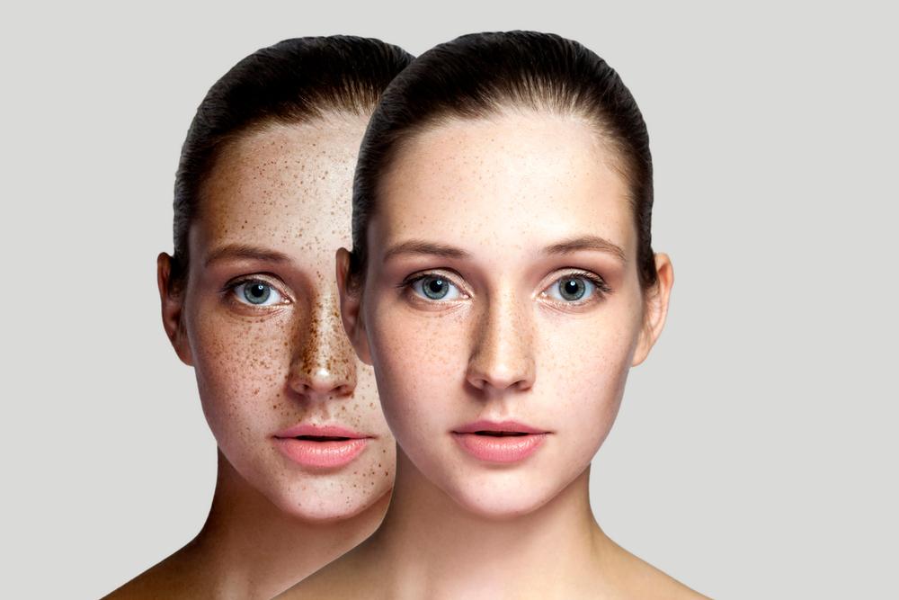 ما هو الكلف الجلدي وأنواعه وأسبابه