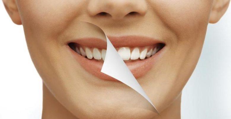 وصفات تبييض الأسنان مجربة