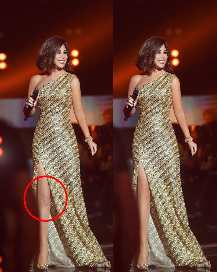 صورة ركبة نجوى كرم المعدلة تثير الجدل