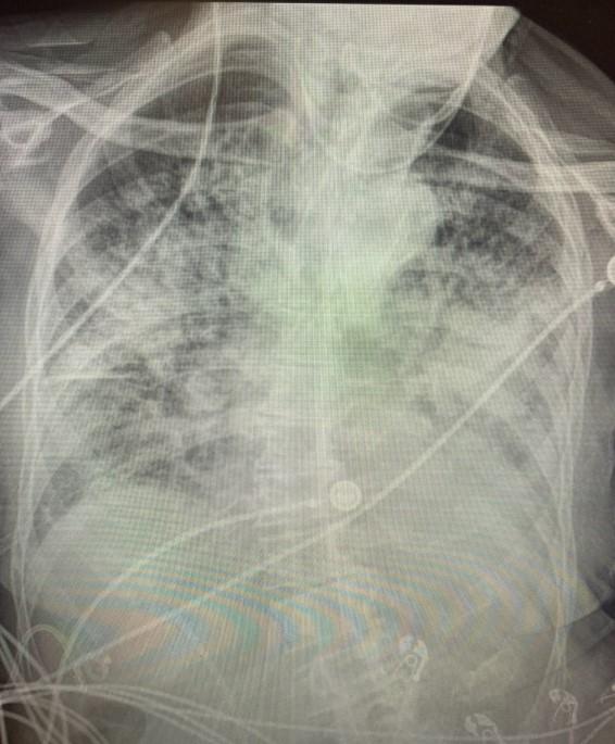 طبيبة جراحة: رئة المصاب بكورونا أسوأ بكثير من رئة المدخنين