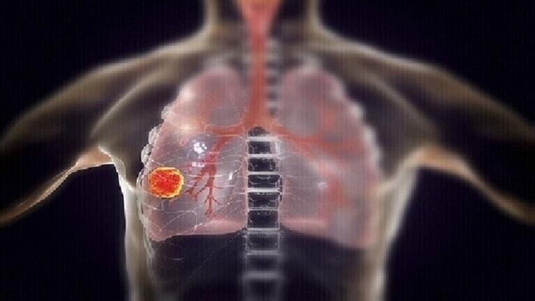5 أعراض مفاجئة لمرض سرطان الرئة القاتل